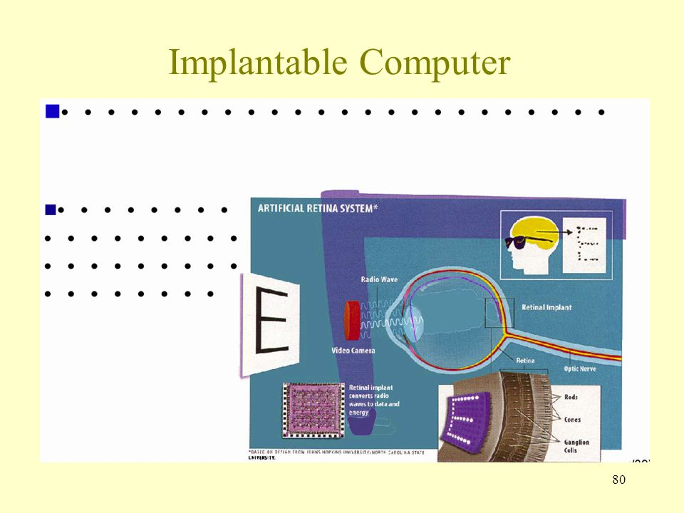 80 Implantable Computer