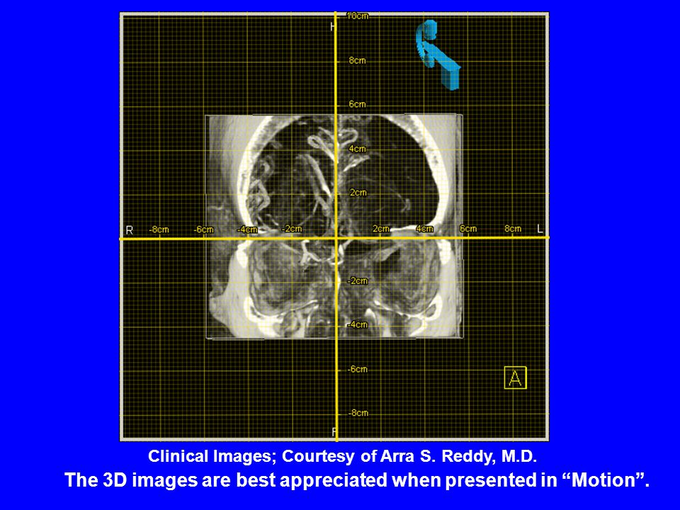 "The 3D images are best appreciated when presented in ""Motion"". Clinical Images; Courtesy of Arra S. Reddy, M.D."
