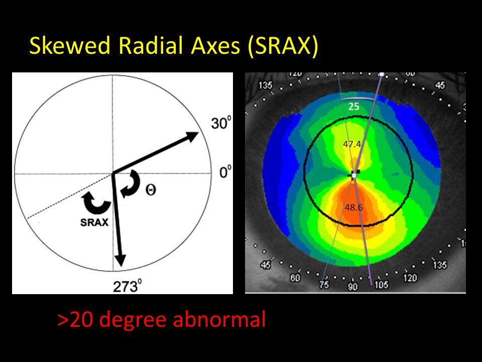 Skewed Radial Axes (SRAX) >20 degree abnormal