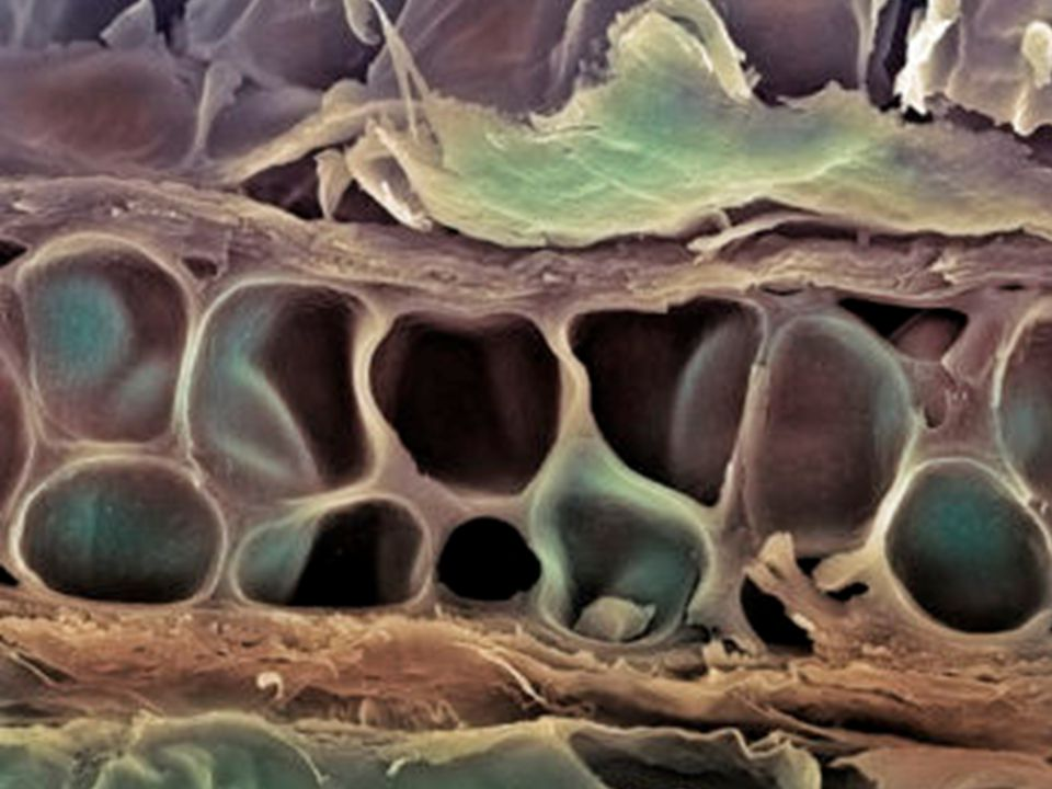 Structure of Short, Irregular, and Flat Bones Thin periosteum- covered compact bone on the outside with endosteum-covered spongy bone (diploë) on the inside Have no diaphysis or epiphyses Bone marrow fills spaces within trabeculae