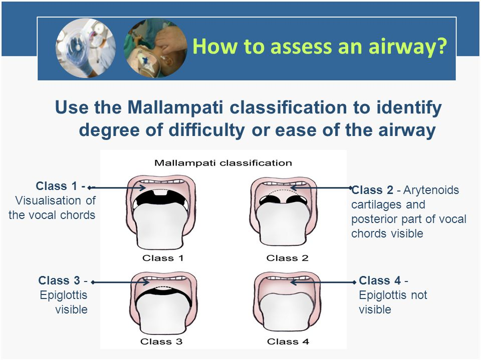 How to assess an airway.