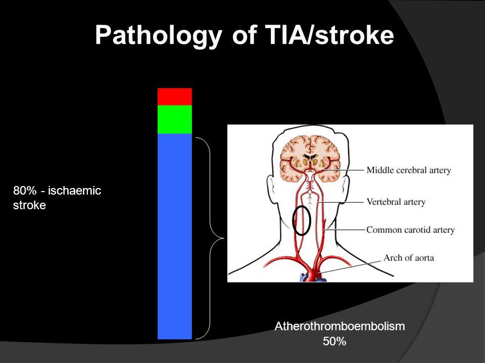 5% - subarachnoid haemorrhage 15% - intracerebral haemorrhage 80% - ischaemic stroke Pathology of TIA/stroke Atherothromboembolism 50%
