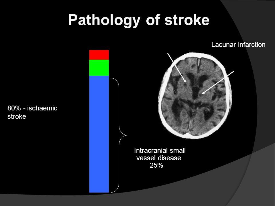 5% - subarachnoid haemorrhage 15% - intracerebral haemorrhage 80% - ischaemic stroke Pathology of stroke Intracranial small vessel disease 25% Lacunar