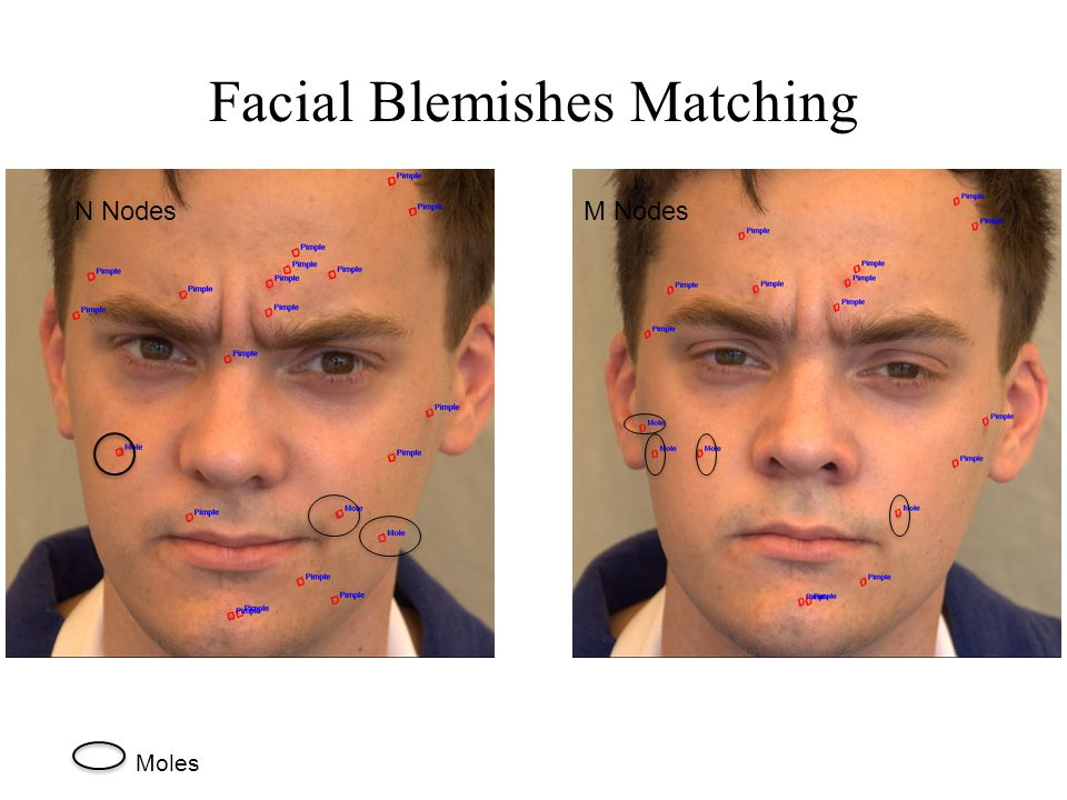Facial Blemishes Matching N NodesM Nodes Moles