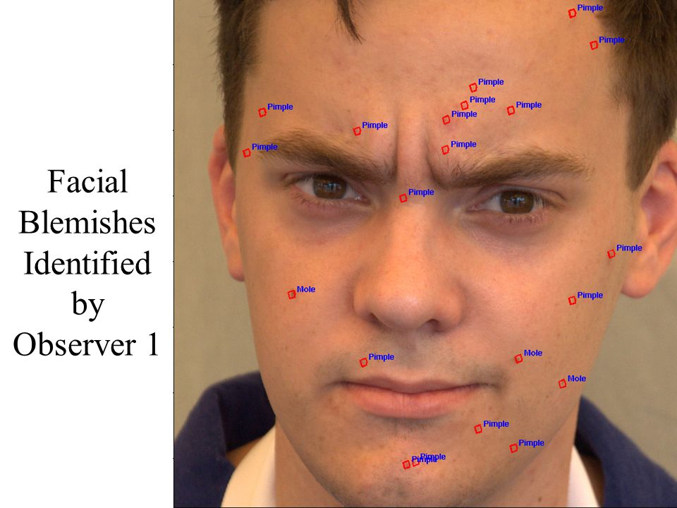 Facial Blemishes Identified by Observer 1