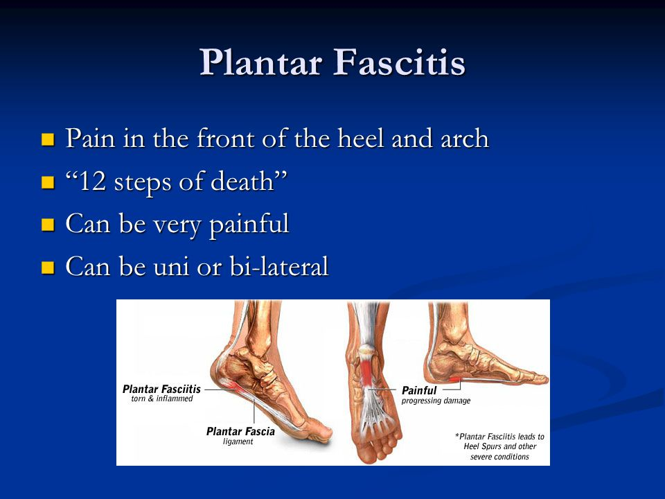 Plantar Fascitis Pain in the front of the heel and arch Pain in the front of the heel and arch 12 steps of death 12 steps of death Can be very painful Can be very painful Can be uni or bi-lateral Can be uni or bi-lateral
