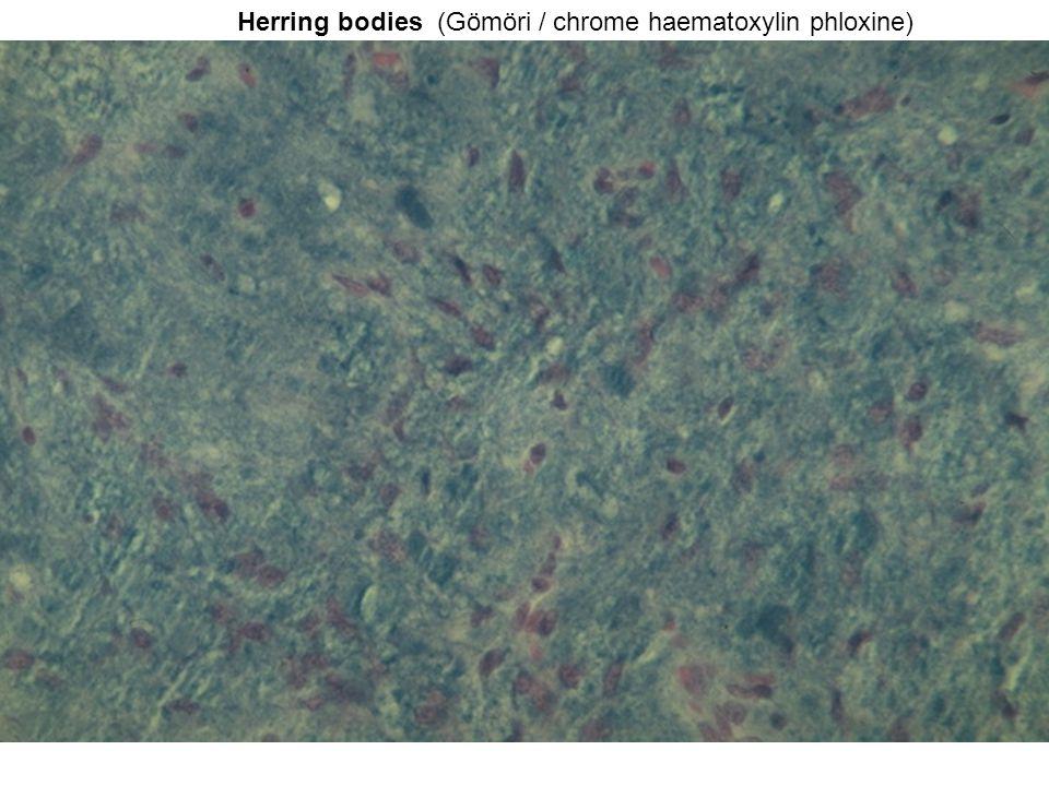 Herring bodies (Gömöri / chrome haematoxylin phloxine)
