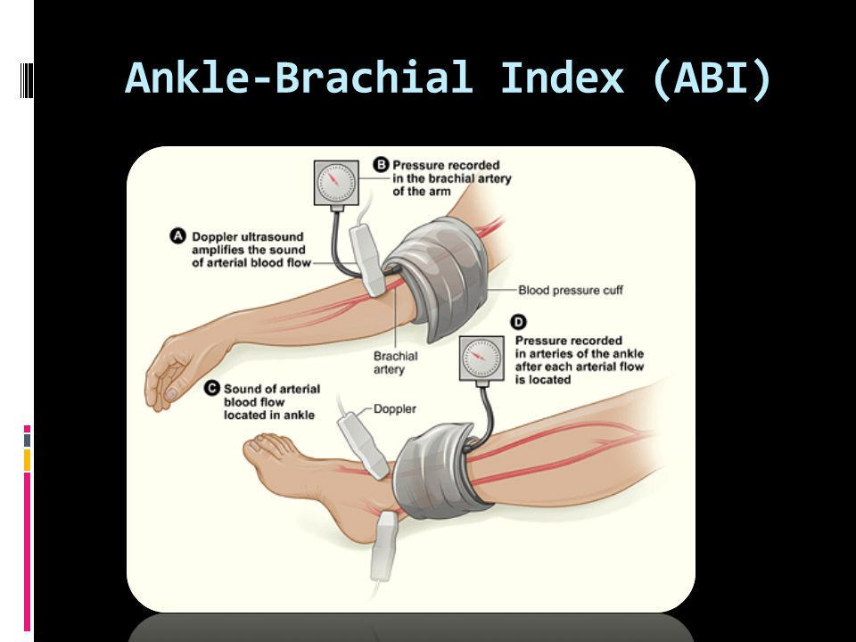 Ankle-Brachial Index (ABI)