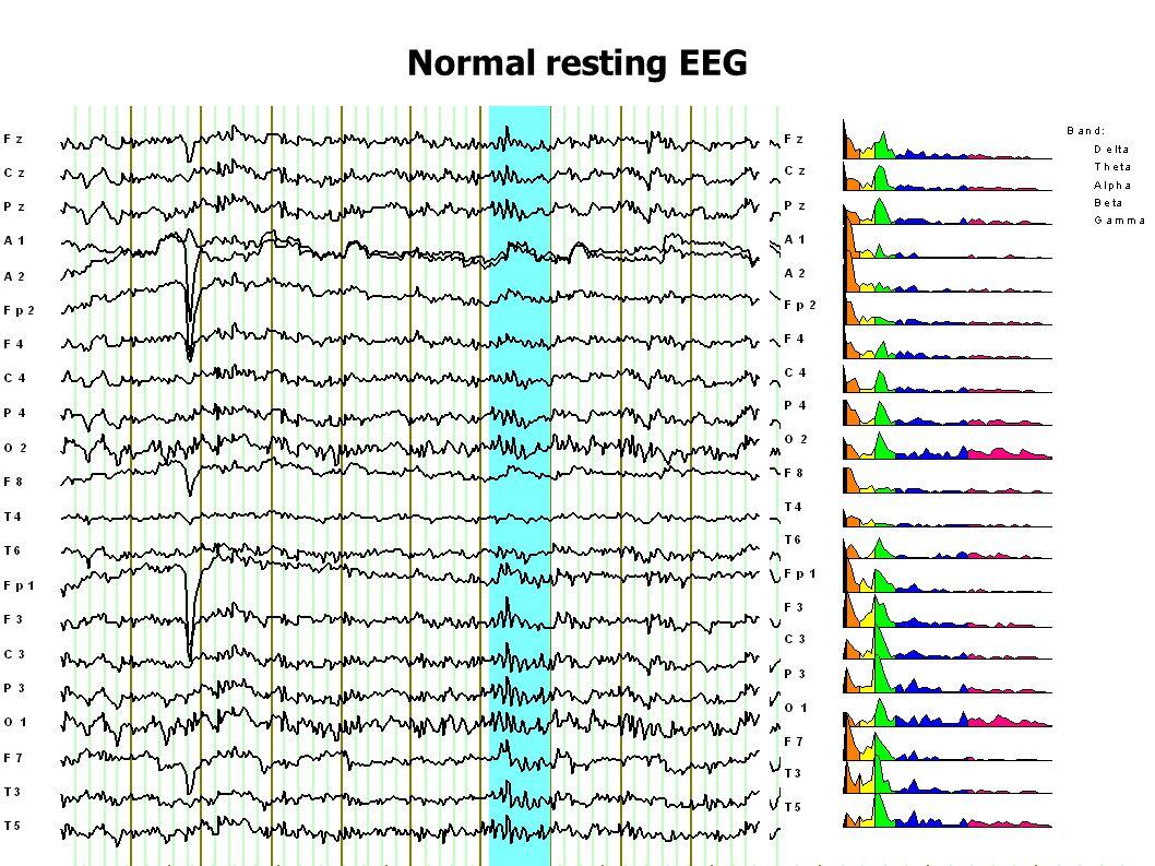 Normal resting EEG
