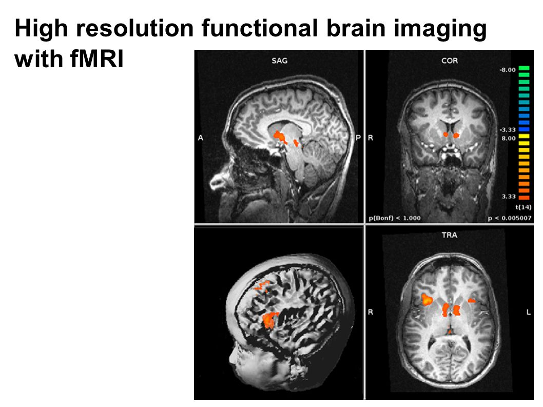 High resolution functional brain imaging with fMRI
