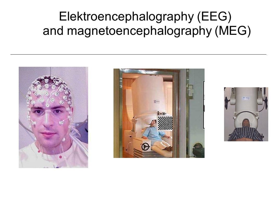 Elektroencephalography (EEG) and magnetoencephalography (MEG)