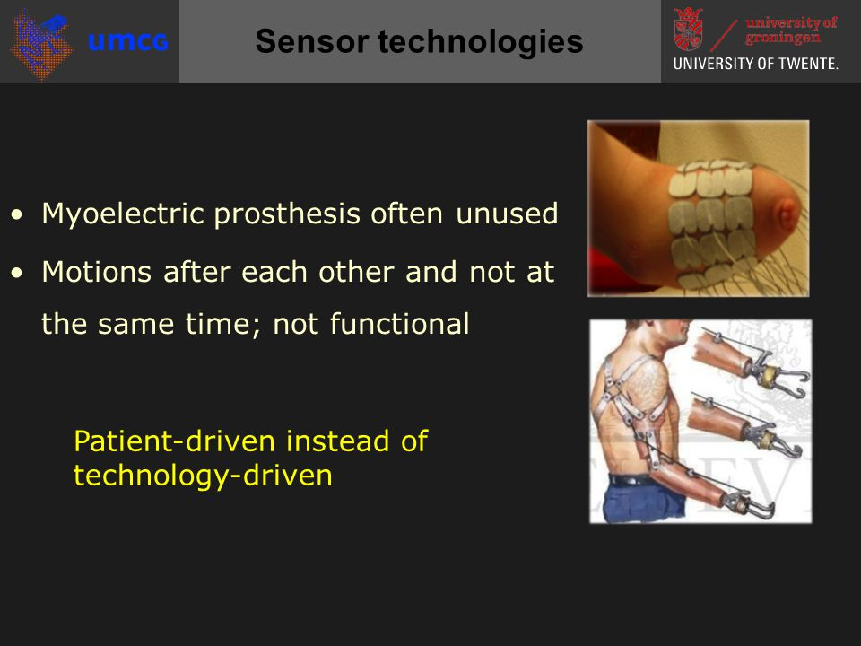 Sensor technologies •Myoelectric prosthesis often unused •Motions after each other and not at the same time; not functional Patient-driven instead of technology-driven