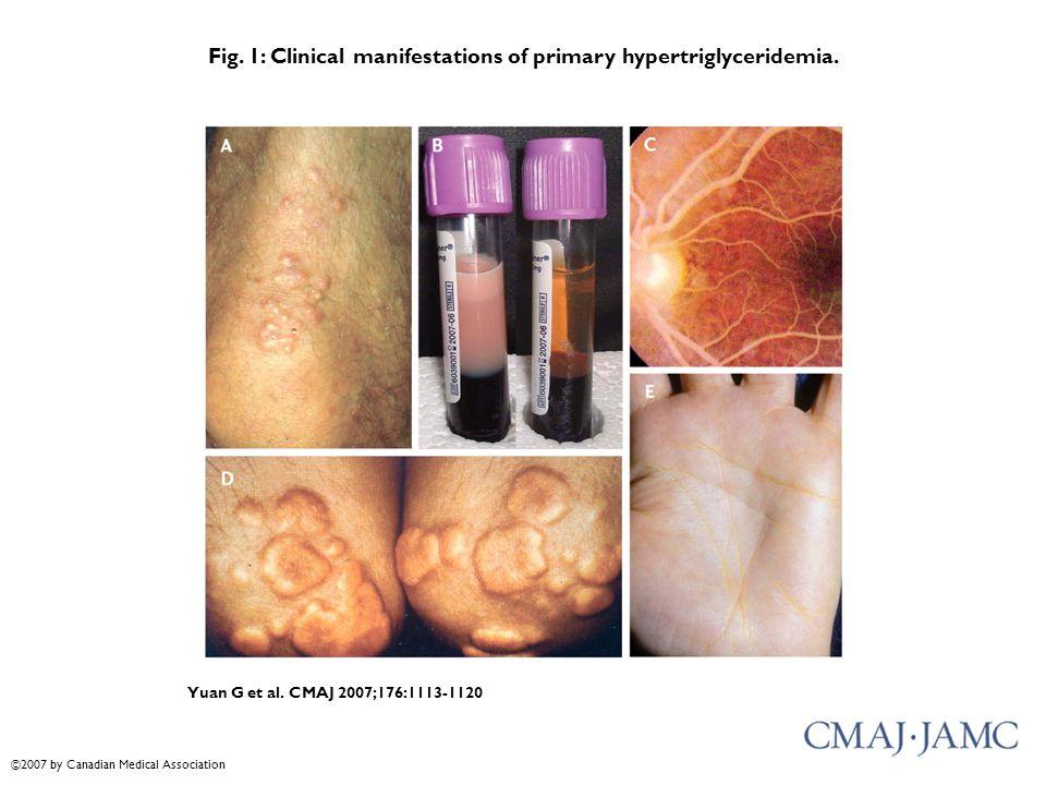 Fig. 1: Clinical manifestations of primary hypertriglyceridemia. Yuan G et al. CMAJ 2007;176:1113-1120 ©2007 by Canadian Medical Association