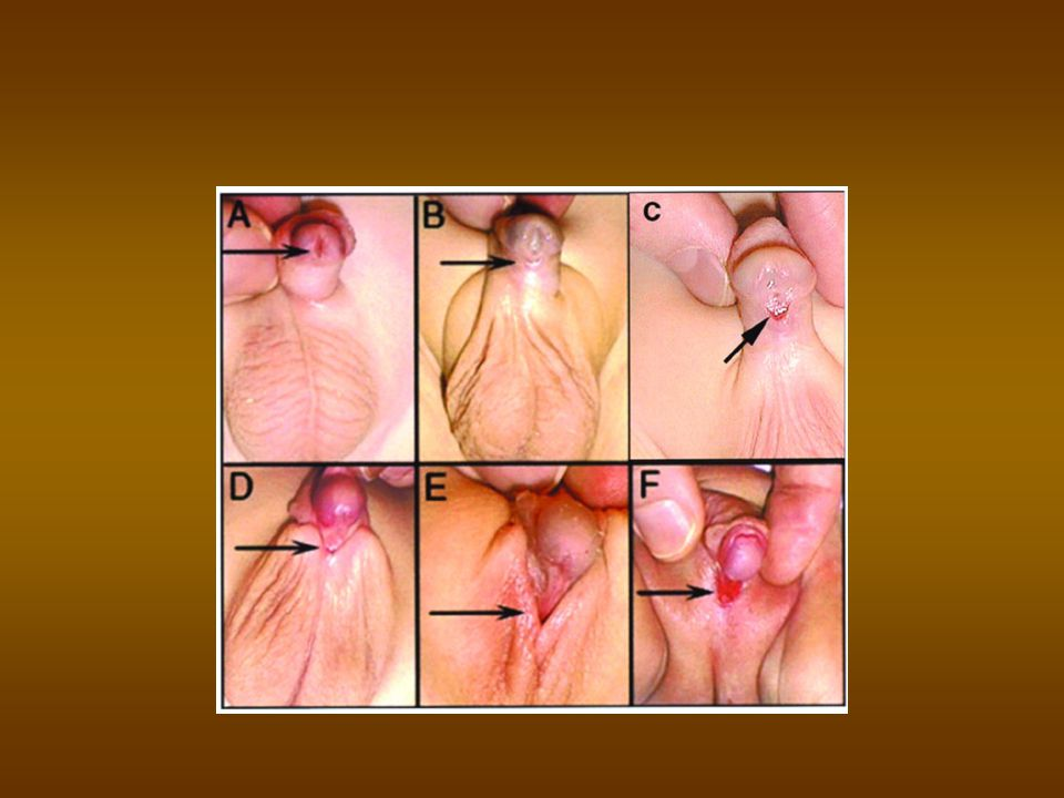 Hypospadias : Symptoms Voiding problems Voiding problems Ejaculation problems Ejaculation problems Sexual problems: the farther the opening is from the tip of the glans, the more likely curvature in the penis (chordee) is present.