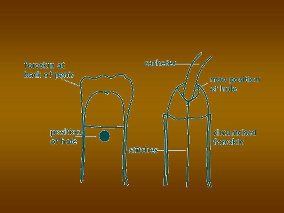 CONGENITALE PENISKROMMING Congenitale verharding in de tunica albuginea van de corpora carvernosa Congenitale verharding in de tunica albuginea van de corpora carvernosa geeft bij erectie kromming naar de kant van de verharding geeft bij erectie kromming naar de kant van de verharding