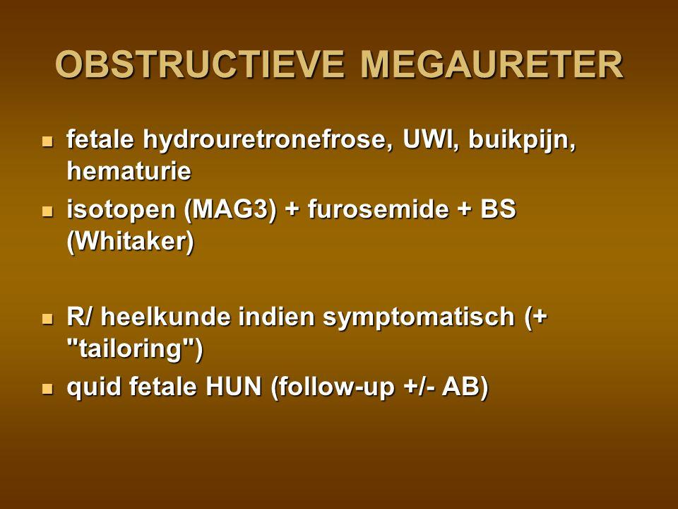 UPJ obstruction: blockage at the left ureteropelvic junction