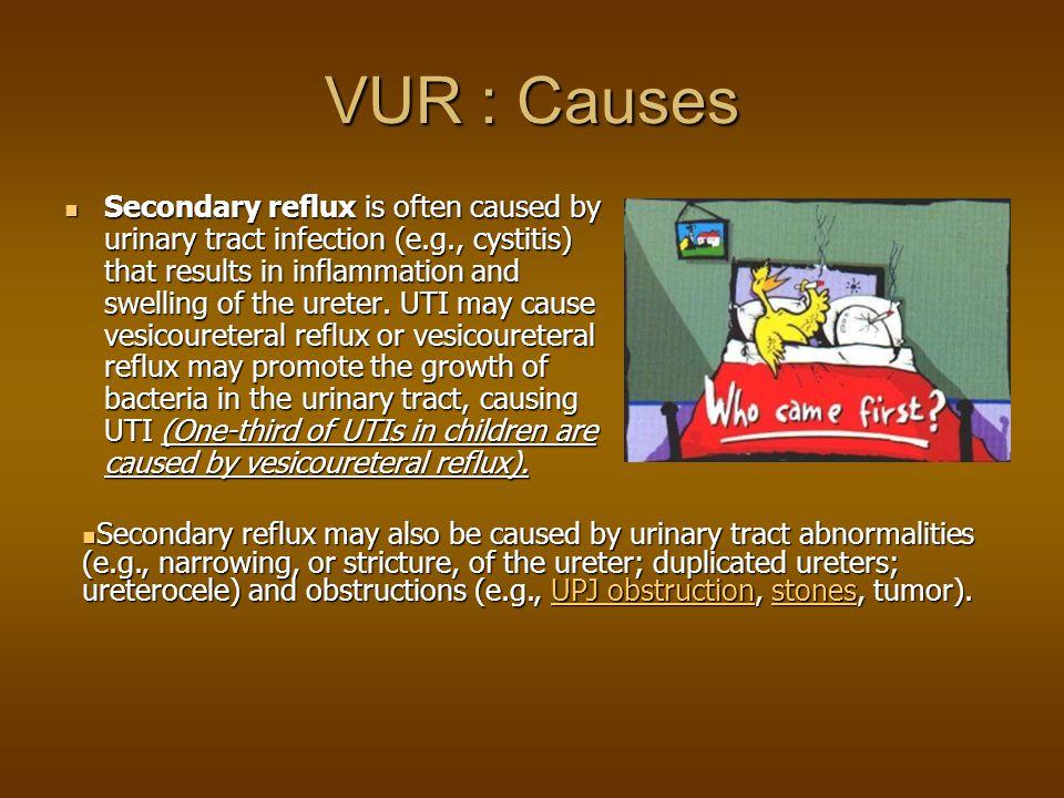 scar-risk: 1) UTI (Big Bang : scar - distorsion - intrarenal reflux) scar-risk: 1) UTI (Big Bang : scar - distorsion - intrarenal reflux) 2) sterile reflux + high P (check lower tractus) complications : - hypertension (10 %) complications : - hypertension (10 %) - renal failure (DMSA) - renal failure (DMSA) VUR : Scarring