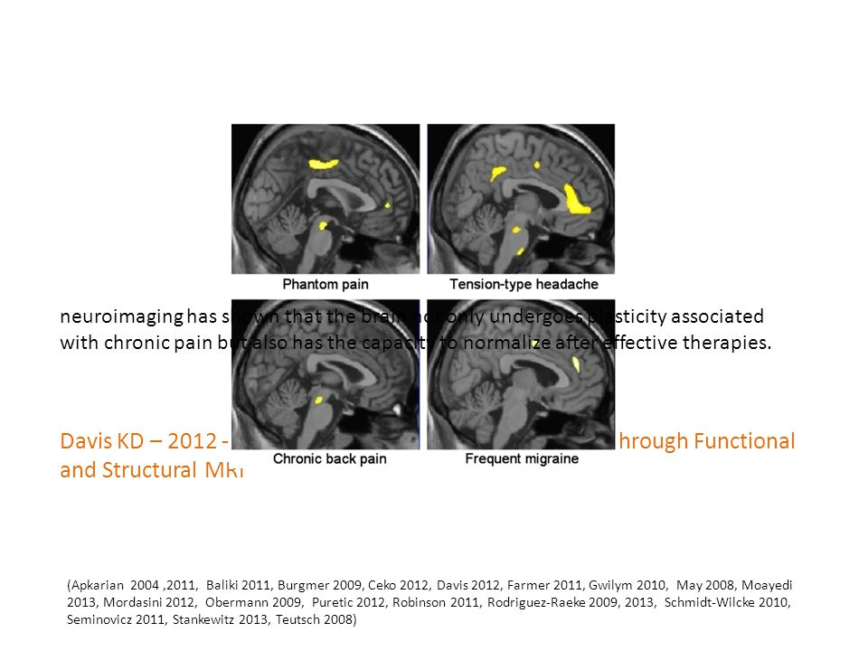 Davis KD – 2012 - Central Mechanisms of Pain Revealed Through Functional and Structural MRI neuroimaging has shown that the brain not only undergoes plasticity associated with chronic pain but also has the capacity to normalize after effective therapies.