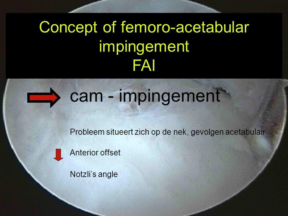 cam - impingement Probleem situeert zich op de nek, gevolgen acetabulair Anterior offset Notzli's angle Concept of femoro-acetabular impingement FAI