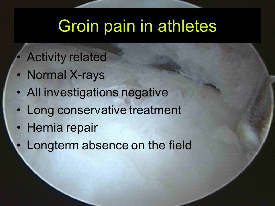 Groin pain in athletes Extra-articular Cause for pain Intra-articular Cause for pain