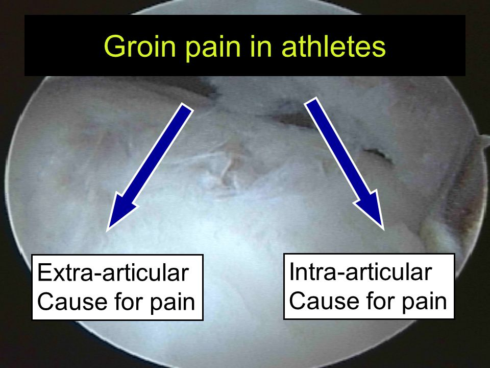 Intra-articular causes for groin pain Acute injury –Torn ligamentum teres –Loose body, cartilage lesion Gradual onset –Concept of impingement