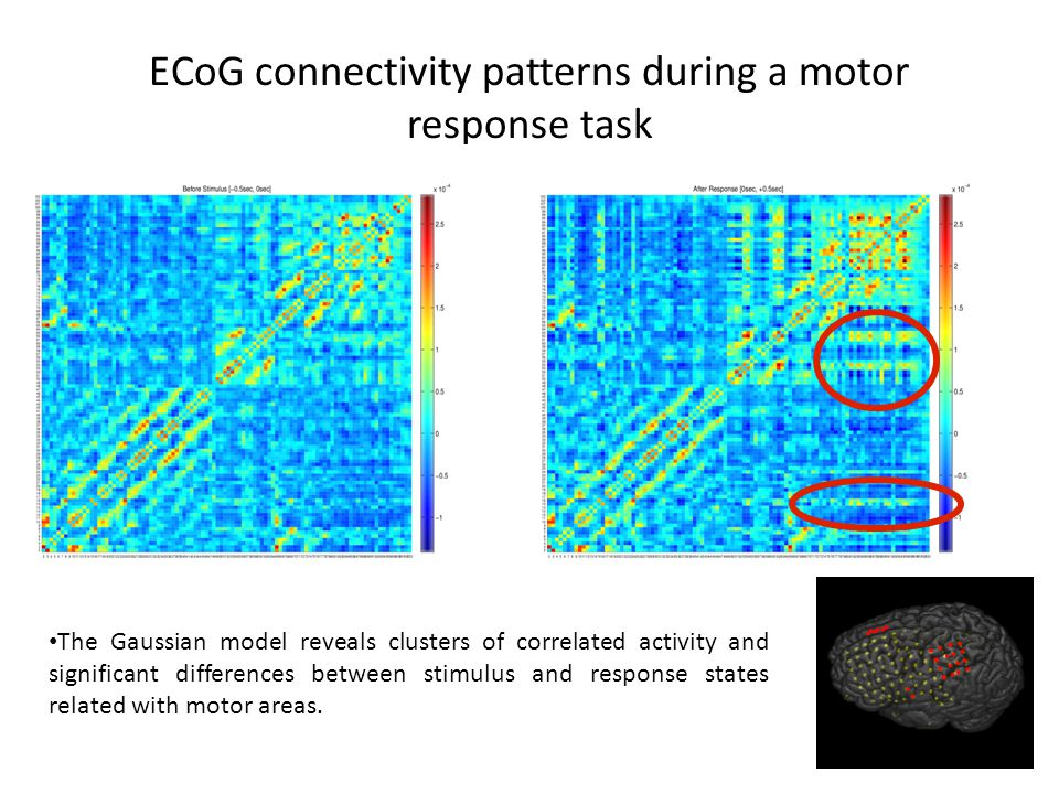 ECoG connectivity patterns during a motor response task The Gaussian model reveals clusters of correlated activity and significant differences between