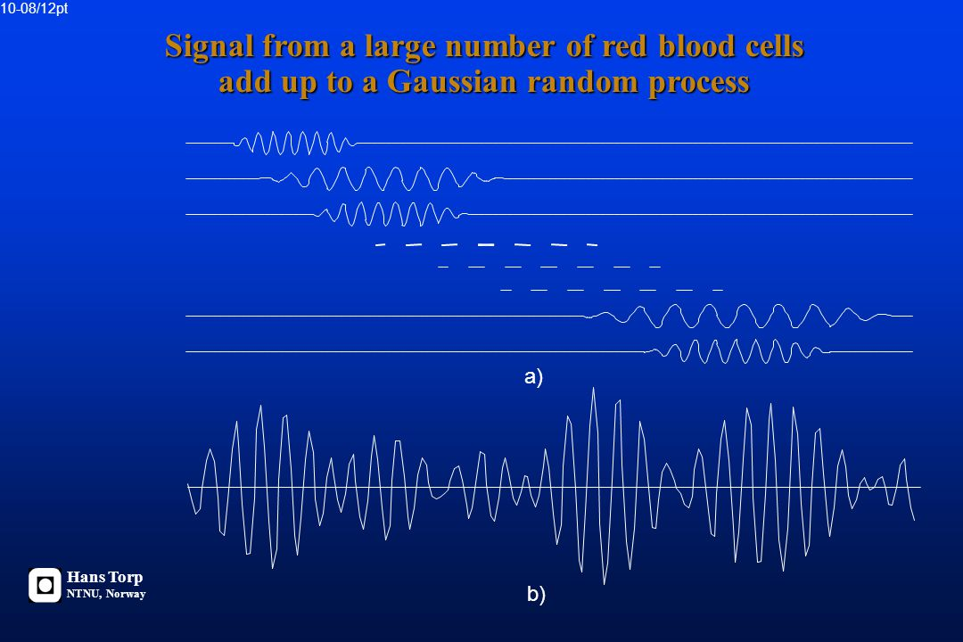 Continous Wave Doppler Signal from all scatterers within the ultrasound beam Pulsed Wave Doppler Signal from a limited sample volume Hans Torp NTNU, N