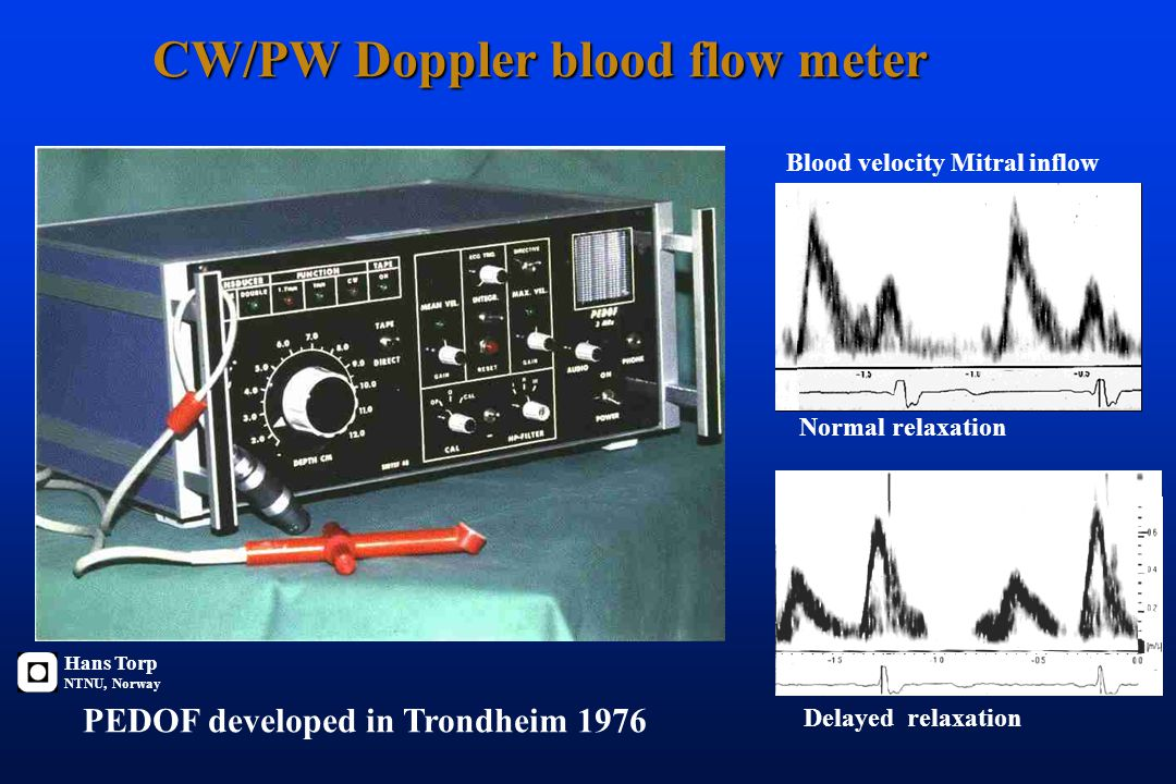 Blood velocity calculated from measured Doppler-shift f d = 2 f o v cos(  ) / c v = c/ 2f o / cos (  ) f d fd : Dopplershift fo : Transmitted freque