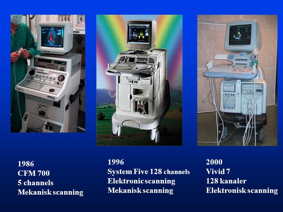 1986 CFM 700 5 channels Mekanisk scanning 1996 System Five 128 channels Elektronic scanning Mekanisk scanning 2000 Vivid 7 128 kanaler Elektronisk scanning