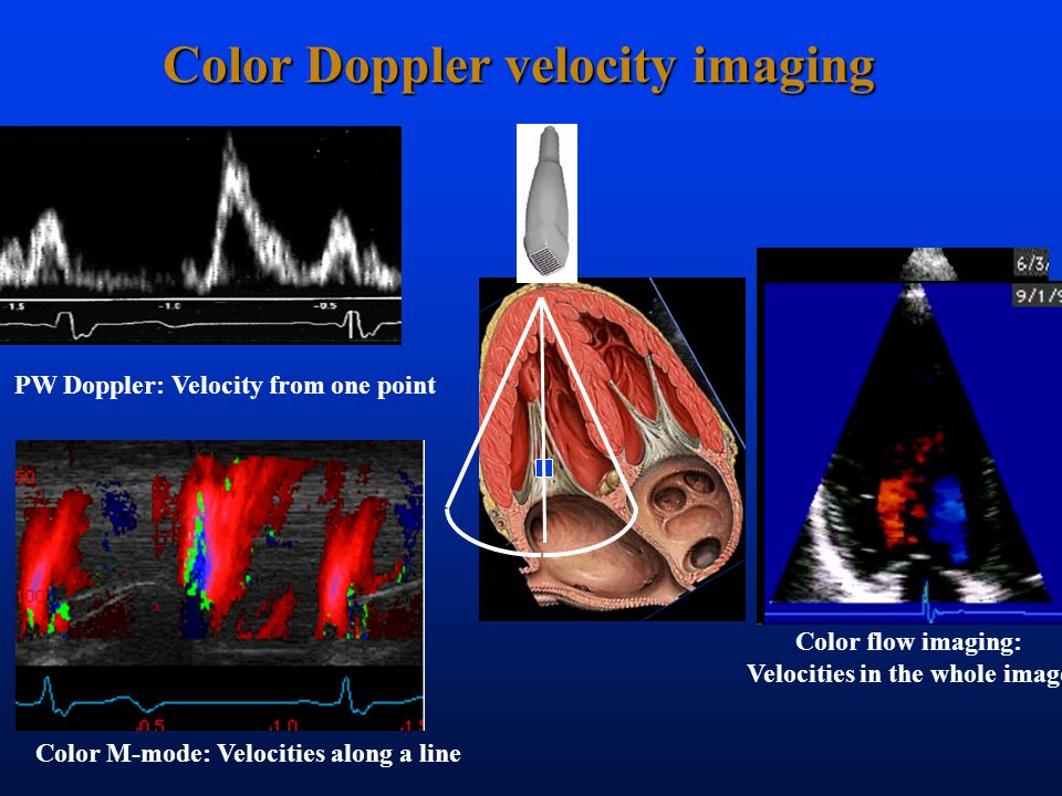 Color Doppler velocity imaging PW Doppler: Velocity from one point Color flow imaging: Velocities in the whole image Color M-mode: Velocities along a line