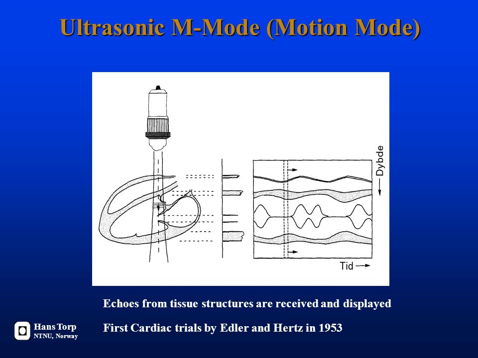 Ultrasonic M-Mode (Motion Mode) Hans Torp NTNU, Norway Echoes from tissue structures are received and displayed First Cardiac trials by Edler and Hertz in 1953