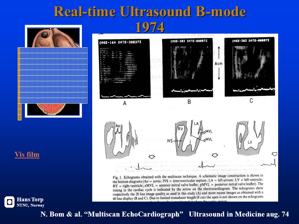 Real-time Ultrasound B-mode 1974 N.Bom & al.