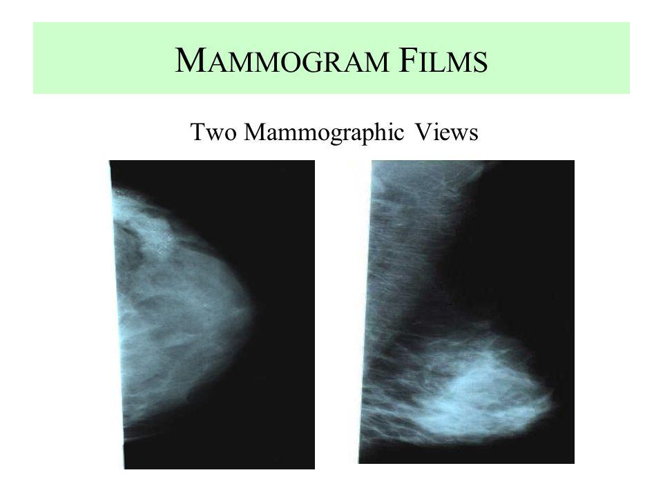 M AMMOGRAM F ILMS Two Mammographic Views
