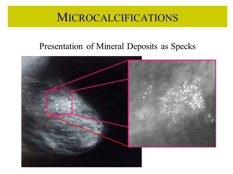 M ICROCALCIFICATIONS Presentation of Mineral Deposits as Specks