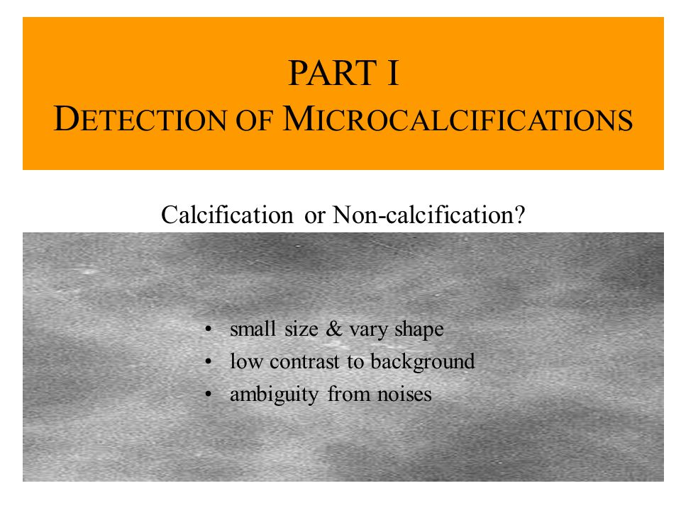 small size & vary shape low contrast to background ambiguity from noises PART I D ETECTION OF M ICROCALCIFICATIONS Calcification or Non-calcification?