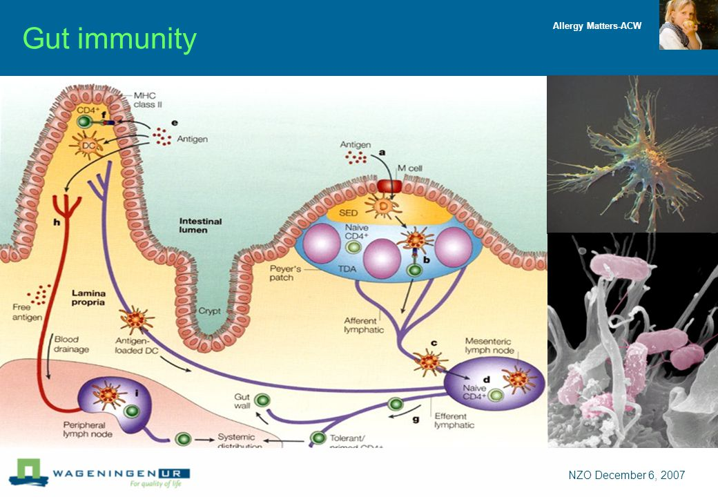 Allergy Matters-ACW NZO December 6, 2007 Gut immunity