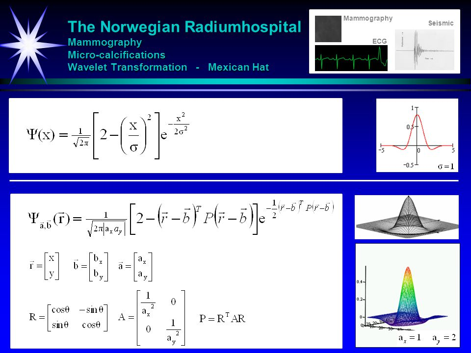 The Norwegian Radiumhospital Mammography Micro-calcifications Wavelet Transformation - Mexican Hat ECG Mammography Seismic