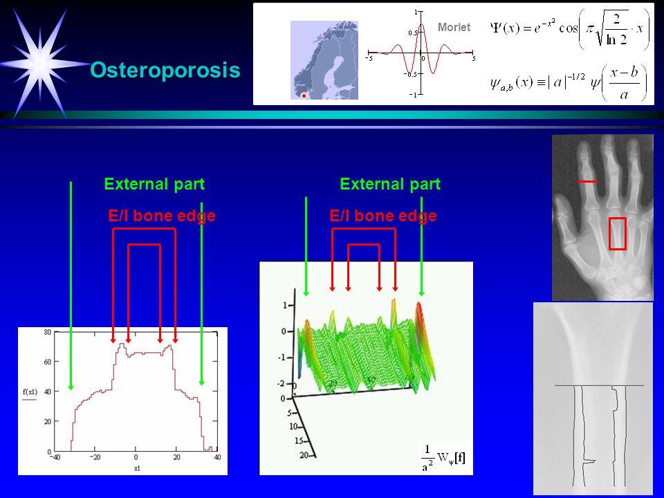 Osteroporosis External part E/I bone edge Morlet