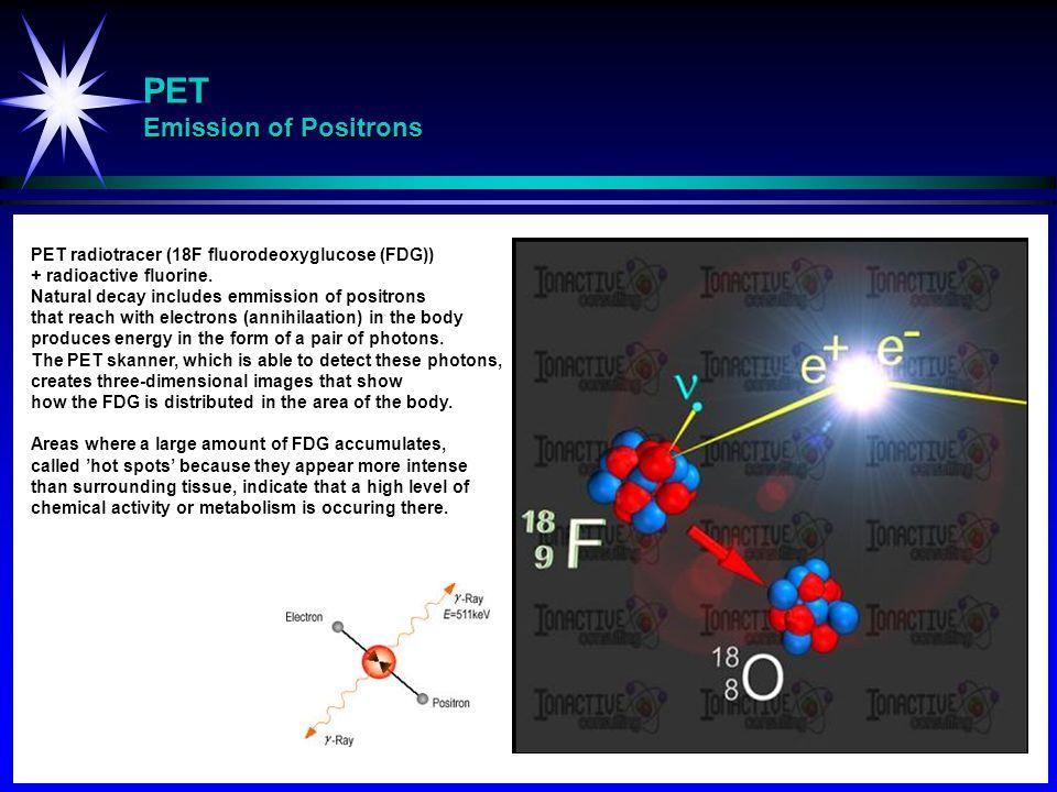 PET Emission of Positrons PET radiotracer (18F fluorodeoxyglucose (FDG)) + radioactive fluorine.