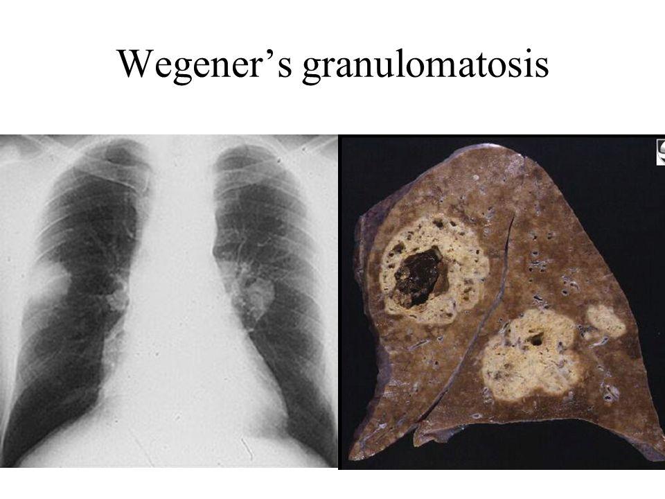 Wegener's granulomatosis