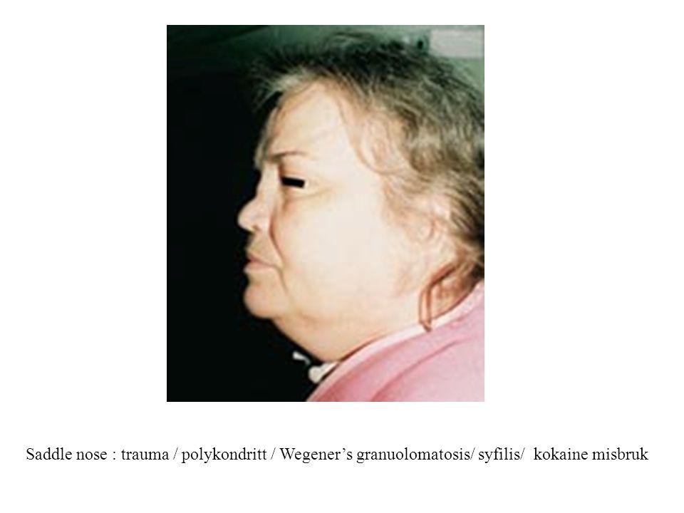 Saddle nose : trauma / polykondritt / Wegener's granuolomatosis/ syfilis/ kokaine misbruk