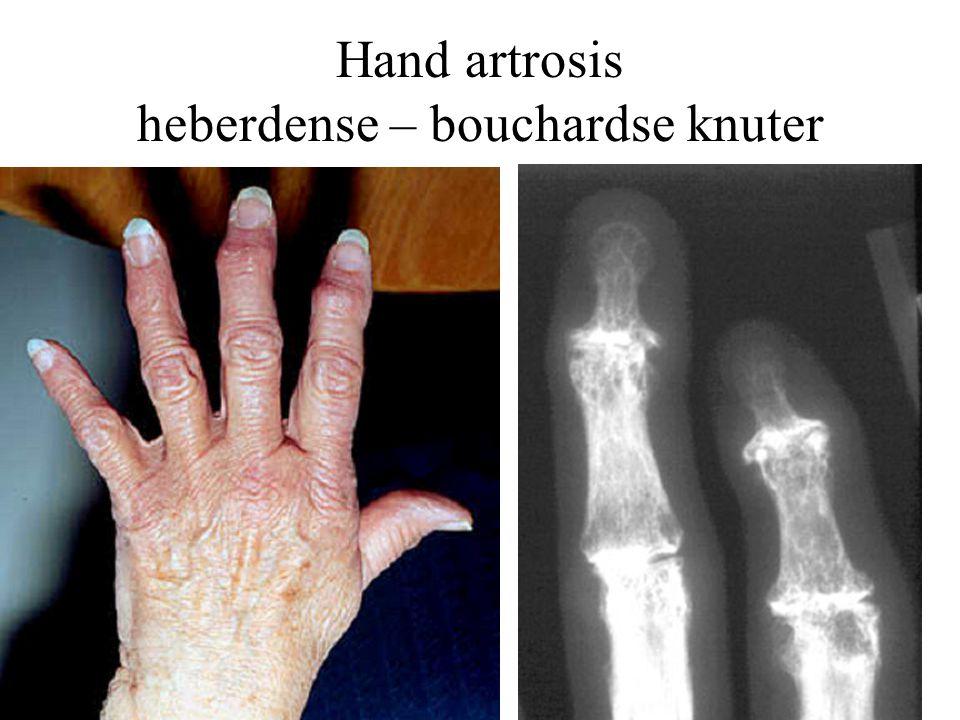 Hand artrosis heberdense – bouchardse knuter