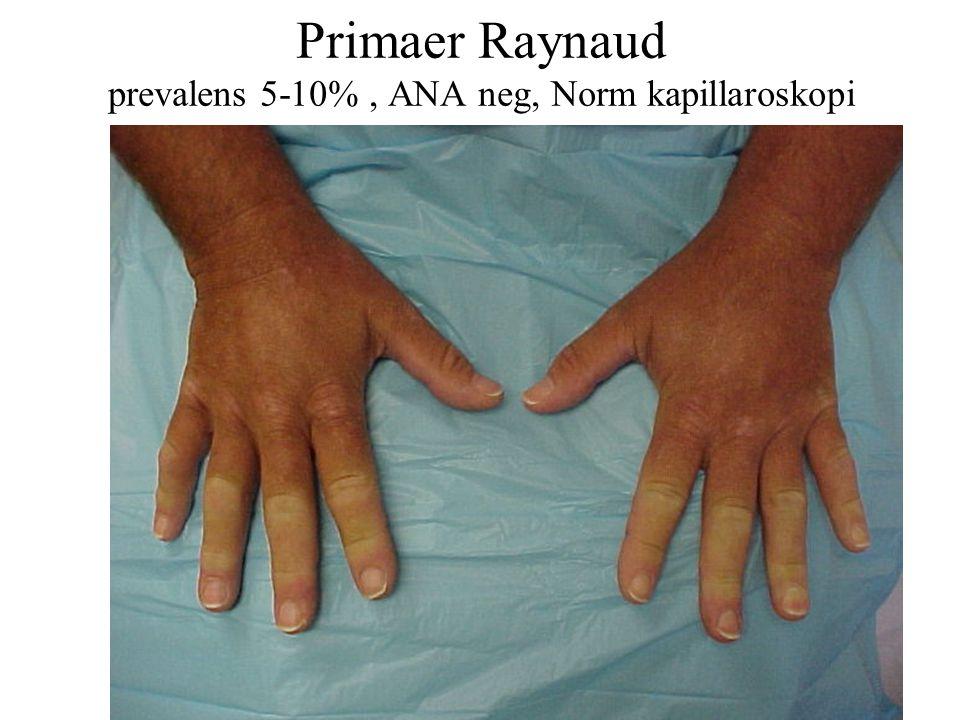 Primaer Raynaud prevalens 5-10%, ANA neg, Norm kapillaroskopi