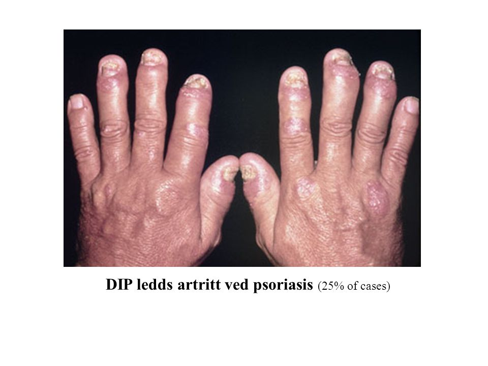 DIP ledds artritt ved psoriasis (25% of cases)