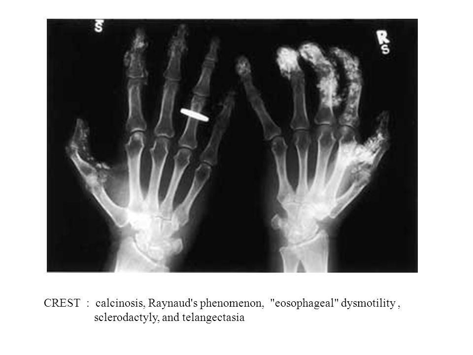 CREST : calcinosis, Raynaud's phenomenon,
