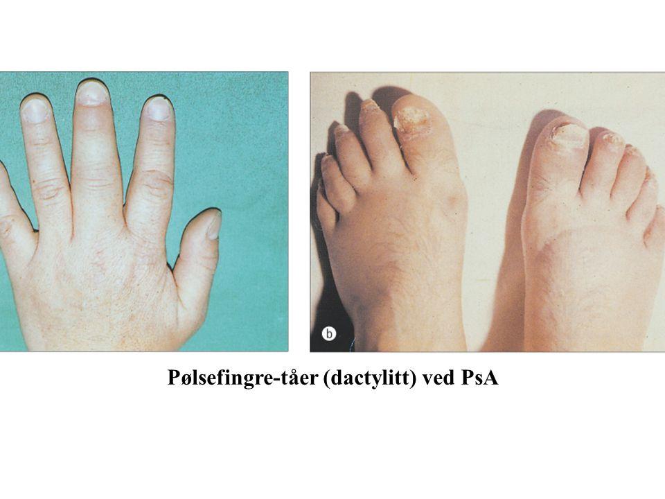 Pølsefingre-tåer (dactylitt) ved PsA