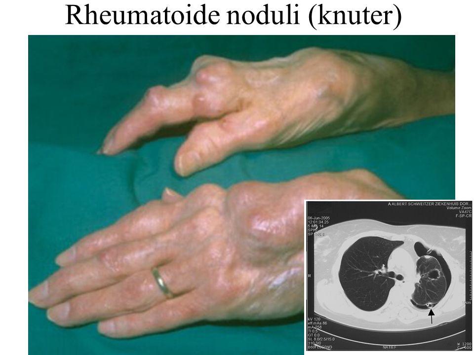 Rheumatoide noduli (knuter)