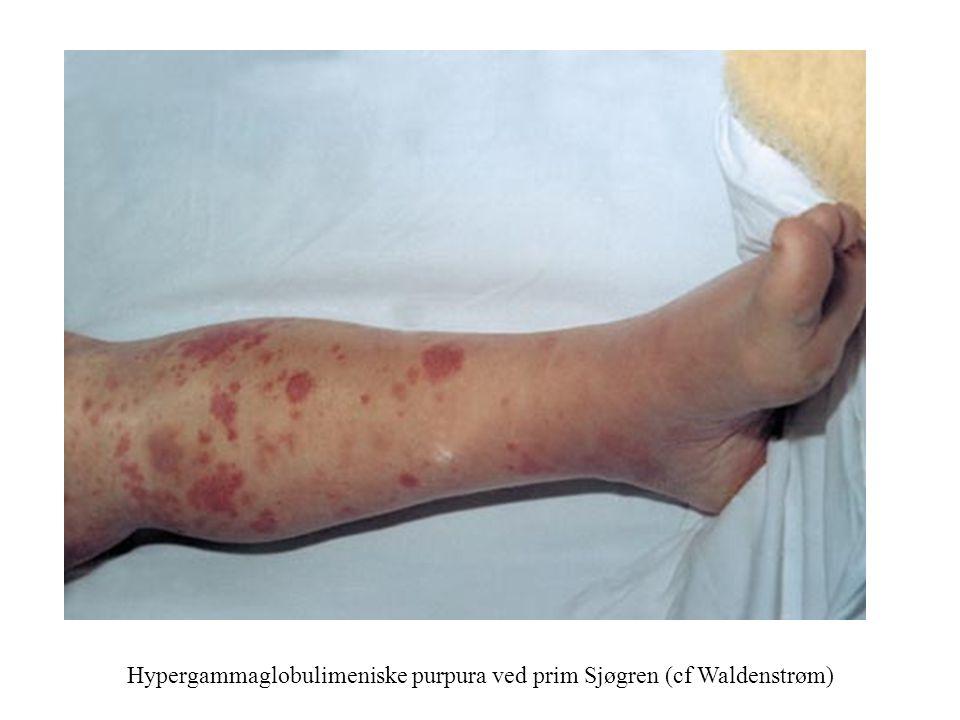 Hypergammaglobulimeniske purpura ved prim Sjøgren (cf Waldenstrøm)