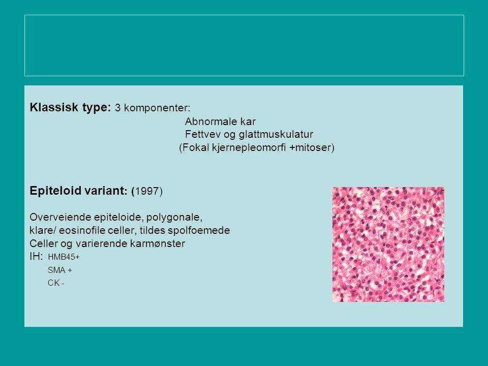 Klassisk type: 3 komponenter: Abnormale kar Fettvev og glattmuskulatur (Fokal kjernepleomorfi +mitoser) Epiteloid variant : (1997) Overveiende epiteloide, polygonale, klare/ eosinofile celler, tildes spolfoemede Celler og varierende karmønster IH: HMB45+ SMA + CK -