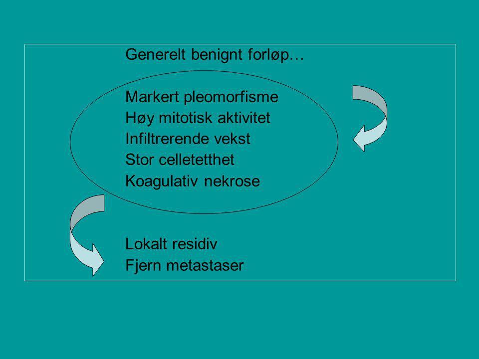 Generelt benignt forløp… Markert pleomorfisme Høy mitotisk aktivitet Infiltrerende vekst Stor celletetthet Koagulativ nekrose Lokalt residiv Fjern metastaser